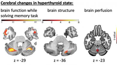 Changes of brain function, brain structure and brain perfusion in subjects with induced hyperthyroidism