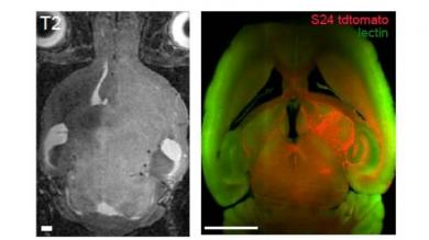 In vivo high field MRI (left) and ultramicroscopy images (right) of the cleared brain shows the extent of tumor cell infiltration of S24 glioma cells (red). The microvasculature is stained with lectin-FITC (green).