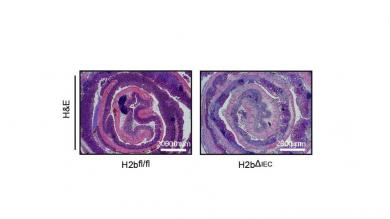 Colitis in mice carrying epithelial specific deletion of RNaseH2b in the intestinal epithelium
