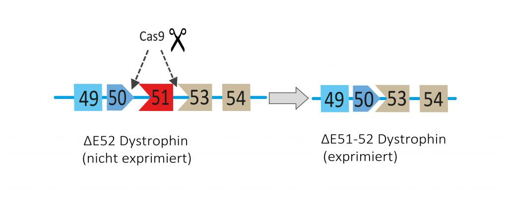 Dystrophin ∆52 lacks exon 52, which prohibits its expression as a protein. Additional excision of exon 51 restores the reading frame and expression of an internally truncated Dystrophin protein ∆51-52.